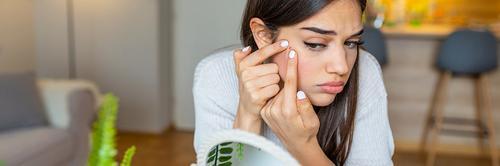 Acne e alimentação: o que você come influencia muito na sua pele!