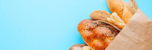 Pão nosso de cada dia: afinal, é preciso parar de comer pão?